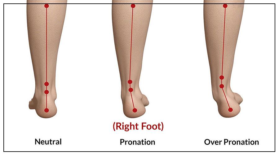 Gait Analysis Running Shoe Fitting at